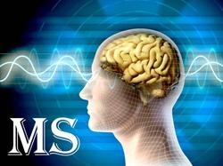پروژه ی آماری spss بیماری های ام.اس و راه های پیشگیری از آن